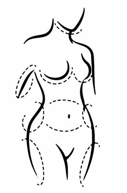 شفط الدهون - فيزر - الدكتور إيهاب فضل - استشاري جراحة السمنة والمناظير - مدرس الجراحة العامة - كلية الطب جامعة عين شمس