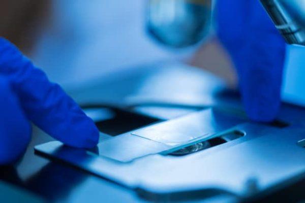 تشخيص أمراض الغدد اللعابية - العينات - الخزعة - الغدة اللعابية - الغدة اللعابية النكافية - الغدة اللعابية تحت الفك السفلي - الغدد اللعابية تحت اللسان - الدكتور إيهاب فضل - استشاري جراحة السمنة والمناظير - مدرس الجراحة العامة - كلية الطب جامعة عين شمس