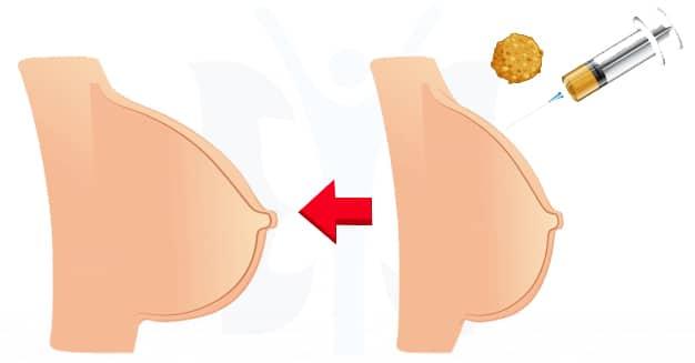 تكبير الثدي باستخدام الدهون الذاتية - عملية تكبير الثدي - الدكتور إيهاب فضل - استشاري جراحة السمنة والمناظير - مدرس الجراحة العامة - كلية الطب جامعة عين شمس