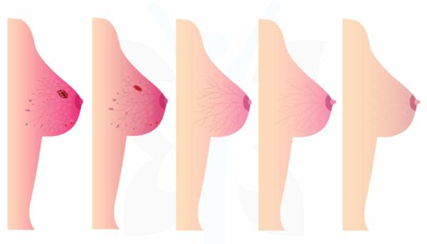 سرطان الثدي الالتهابي - مراحل سرطان الثدي الالتهابي - أنواع أورام الثدي - أنواع سرطان الثدي - جراحة سرطان الثدي - استئصال الثدي الجذري و التحفظي - الدكتور إيهاب فضل - استشاري جراحة السمنة والمناظير - مدرس الجراحة العامة - كلية الطب جامعة عين شمس