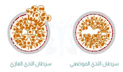 الفرق بين سرطان الثدي الموضعي ( في الموقع ) و سرطان الثدي الغازي ( المجتاح ) - الدكتور إيهاب فضل - استشاري جراحة السمنة والمناظير - مدرس الجراحة العامة - كلية الطب جامعة عين شمس
