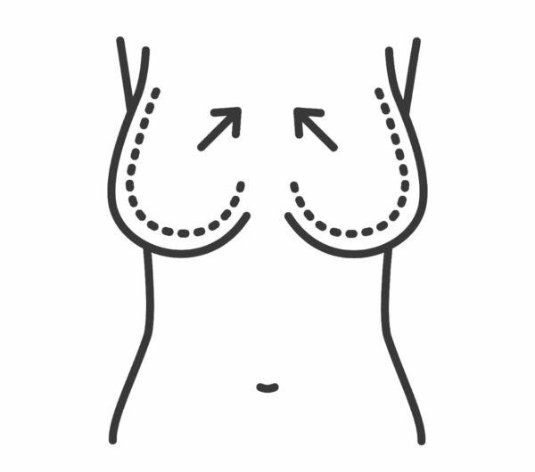 عملية تصغير الثدي - الدكتور إيهاب فضل - استشاري جراحة السمنة والمناظير - مدرس الجراحة العامة - كلية الطب جامعة عين شمس