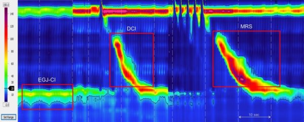قياس ضغط المريء - تشخيص مرض الارتجاع ( الارتداد ) المعدي المريئي - عملية نيسان لطي قاع المعدة بالمنظار - الدكتور إيهاب فضل - استشاري جراحة السمنة والمناظير - مدرس الجراحة العامة - كلية الطب جامعة عين شمس